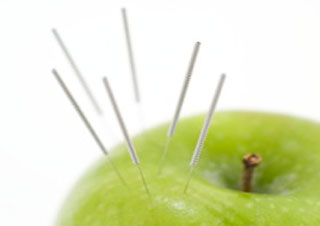 Akupunktur Bildquelle Fotolia_17973674_M